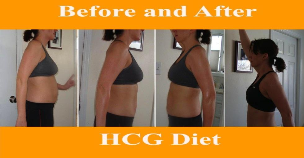 Is HCG Diet a Long-Term Solution for Obesity?