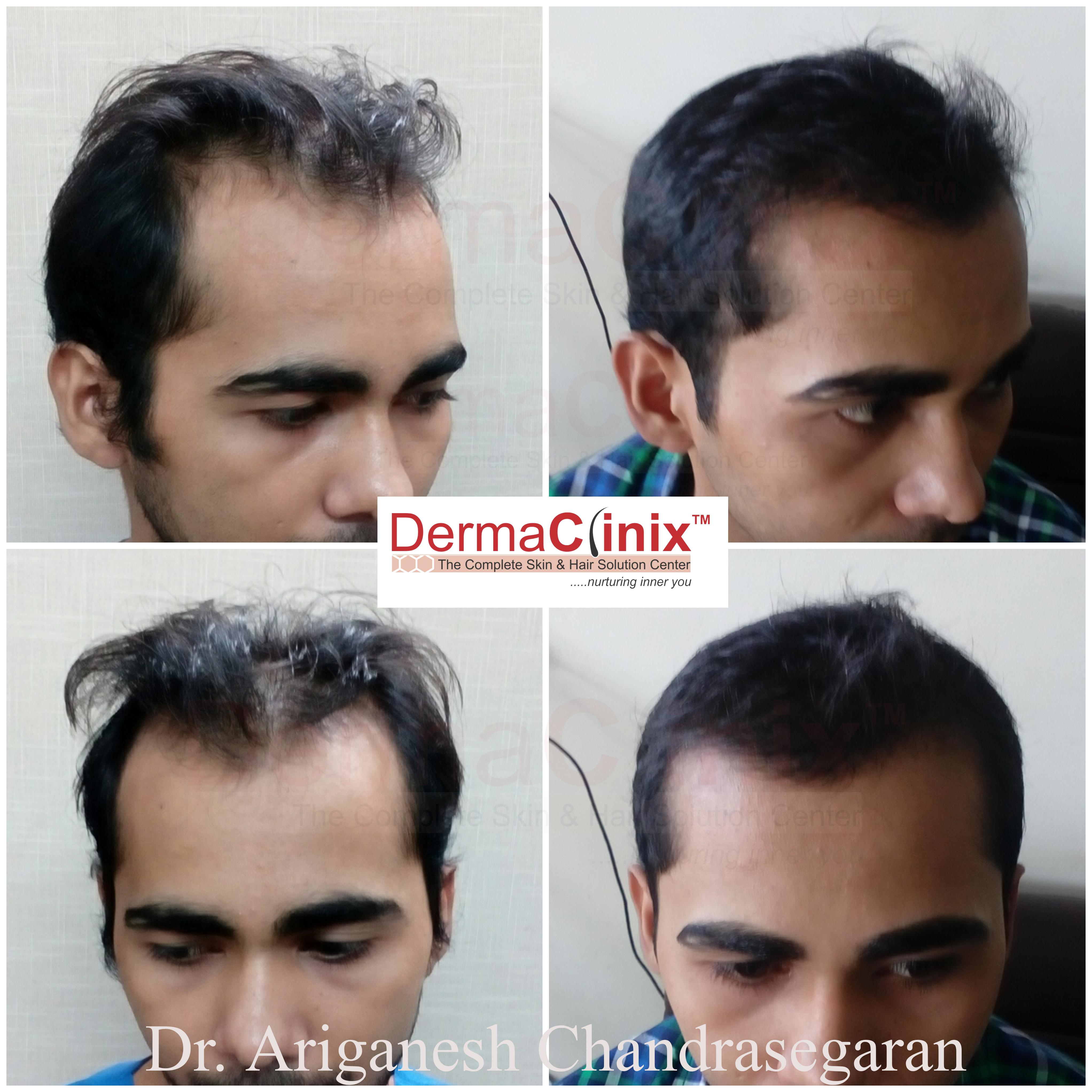 Number of Hair Transplantation One Can Get in a Lifetime