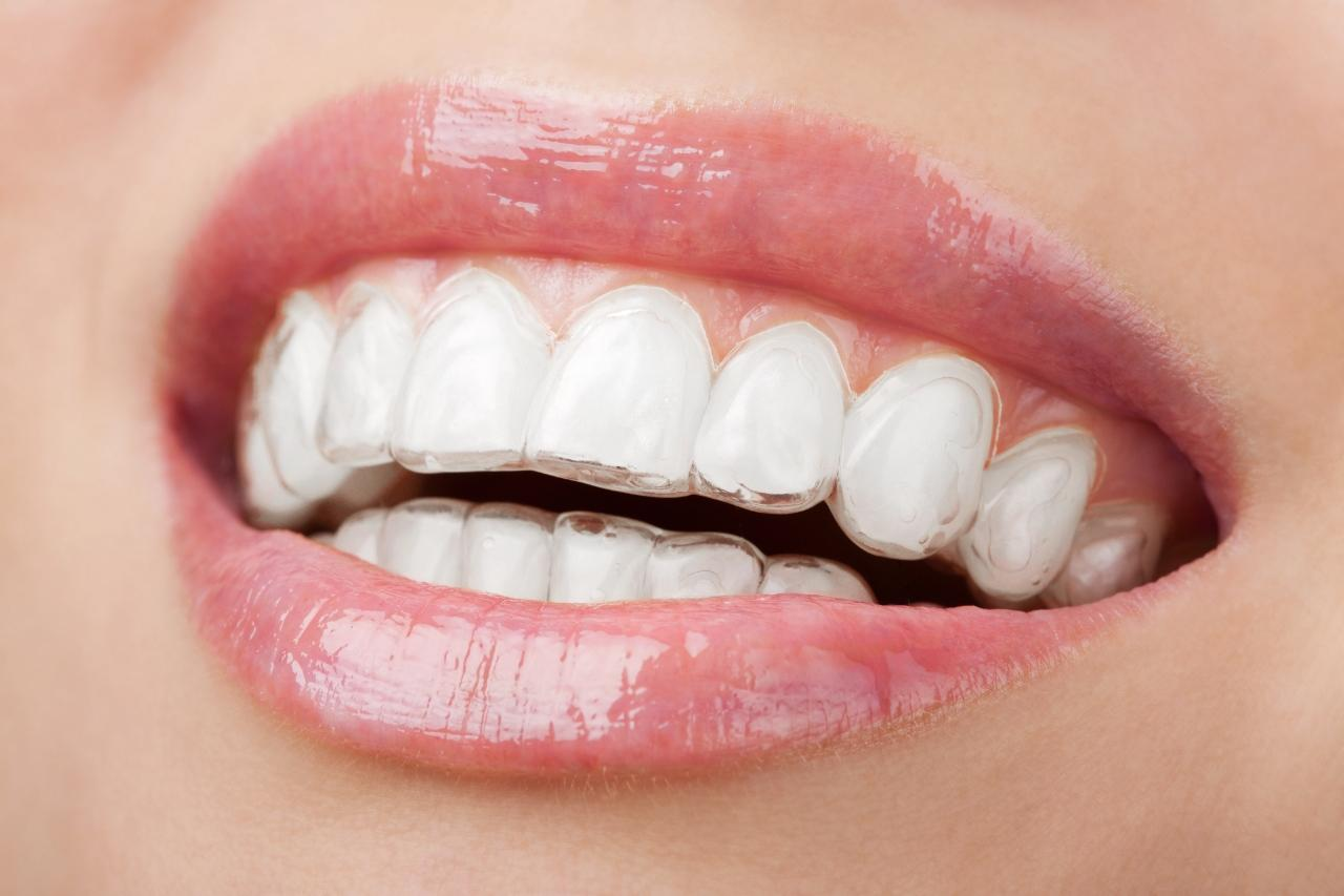 Cosmetic Dentistry Procedures to Generate Enhanced Appearance