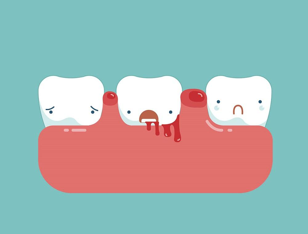 Do you have good dental etiquette? 11 Do's and Don'ts