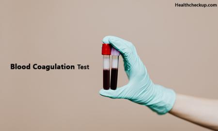 What Is Coagulation Test And How It Is Done?