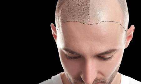 Things To Do In Order To Prevent Hair Loss