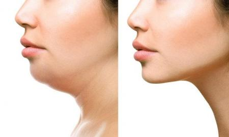 Ten reasons you should try Kybella treatment